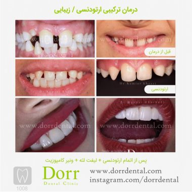 1008-tooth-reconstruction-dental-restoration-before-after
