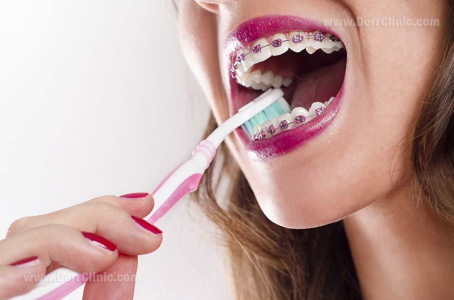 بهداشت دهان و دندان با ارتودنسی