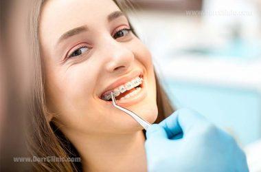 مشکلات قابل حل با ارتودنسی - orthodontic problems