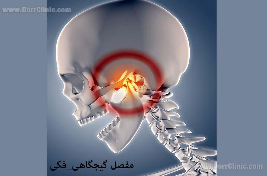 اختلالات مفصل گیجگاهی فکی