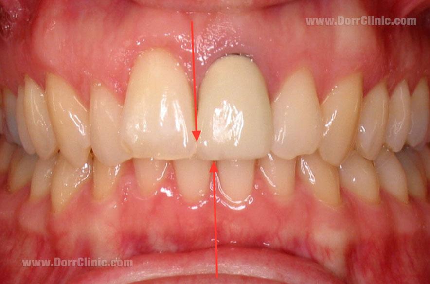 عدم تعادل خط میانی دندان ها