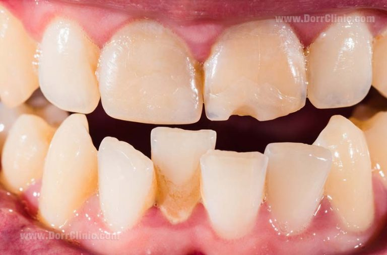 Misaligned teeth
