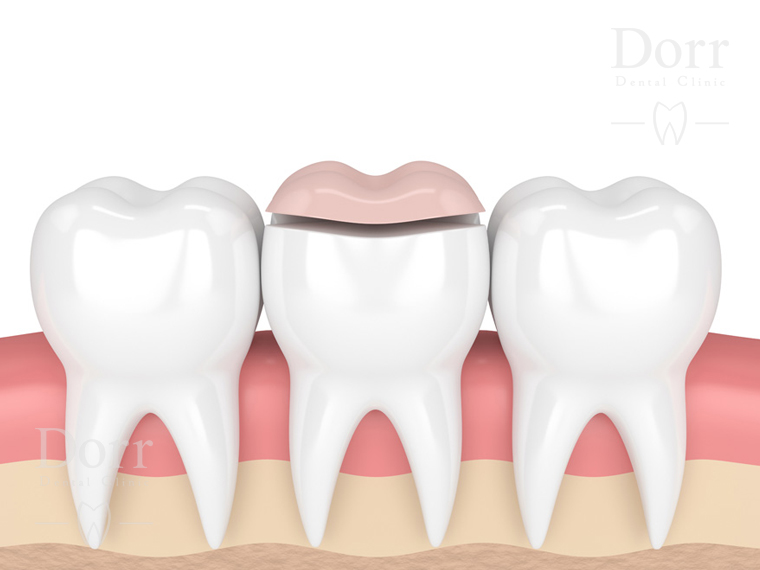 Dental onlay