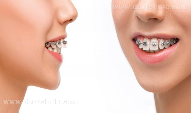 دیپ بایت دندان