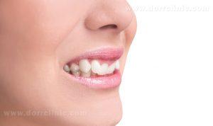نا هماهنگی دندان ها