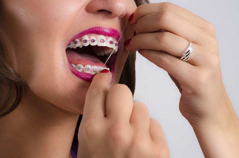 نخ دندان در زمان ارتودنسی